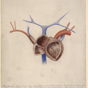 L0061367 Fused hearts of a two-headed foetus (dicephalus dibrachius) Credit: St Bartholomew's Hospital Archives & Museum, Wellcome Images. Wellcome Images images@wellcome.ac.uk http://wellcomeimages.org Watercolour drawing of the fused hearts of a two-headed 'monster' (dicephalus dibrachius). The left heart is normal. The right heart retains the tubular form. It consists of an auricle, which is also common to the left heart and a single ventricular cavity from which a muscular tube (bulbus aortae) passes and gives off the aorta and pulmonary artery. [1880] By: Godart, ThomasSt Bartholomew's Hospital Archives & Museum Published:  -   Copyrighted work available under Creative Commons Attribution only licence CC BY 4.0 http://creativecommons.org/licenses/by/4.0/